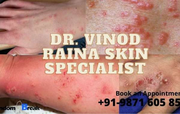 Treat Scabies Infection in Delhi by Dr. Raina