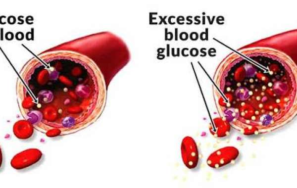 What The visible advantages Of Using Glucofort?